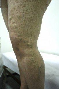 Varizes - Fluxo clínica de cirurgia vascular