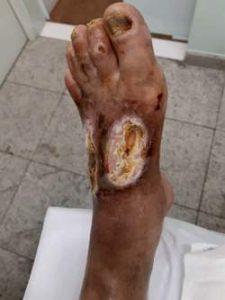 Úlceras isqu~emicas - gangrena do pé esquerdo