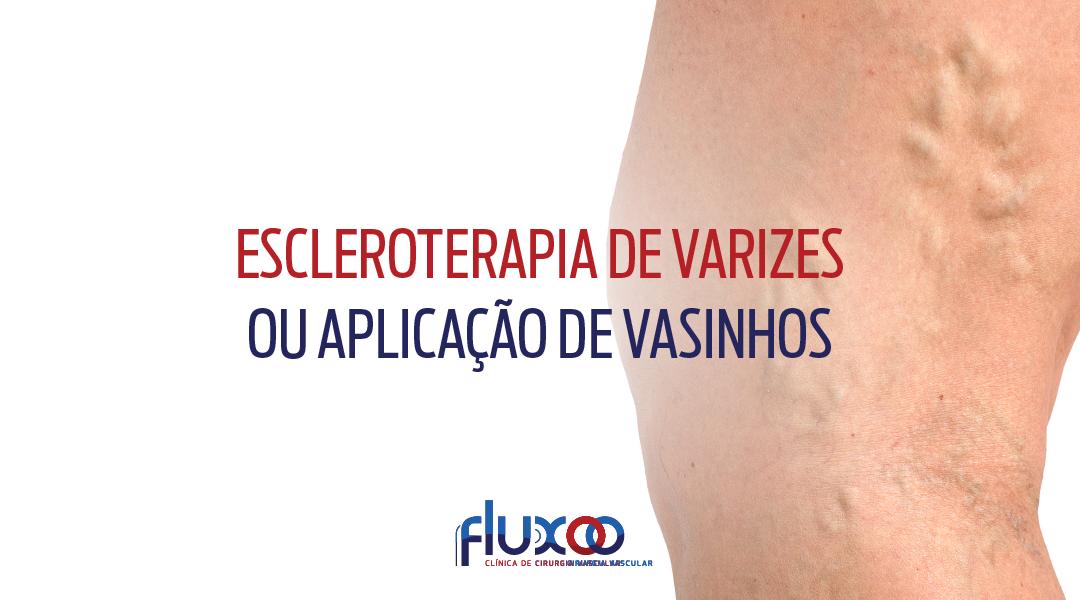 Escleroterapia de varizes ou aplicação de vasinhos