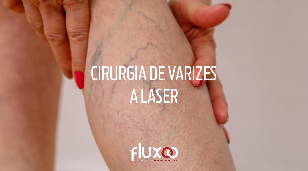 Cirurgia de varizes a laser