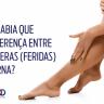 Feridas vasculares nas pernas - Infográfico - Fluxo Cirurgia Vascular