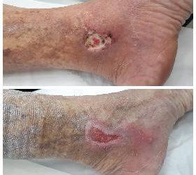 Tratamento da Úlcera Varicosa